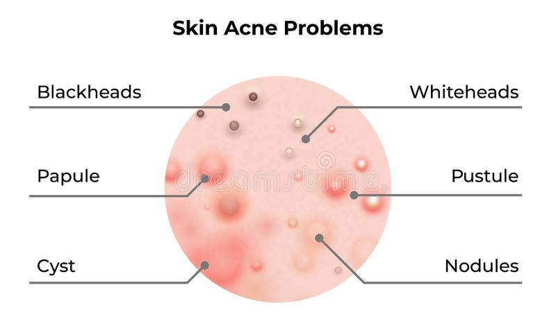 Skin acne types diagram. Vector skin problems disease, pimples blackheads and comedones, cosmetology skincare treatment. Skin acne types diagram. Vector skin stock illustration