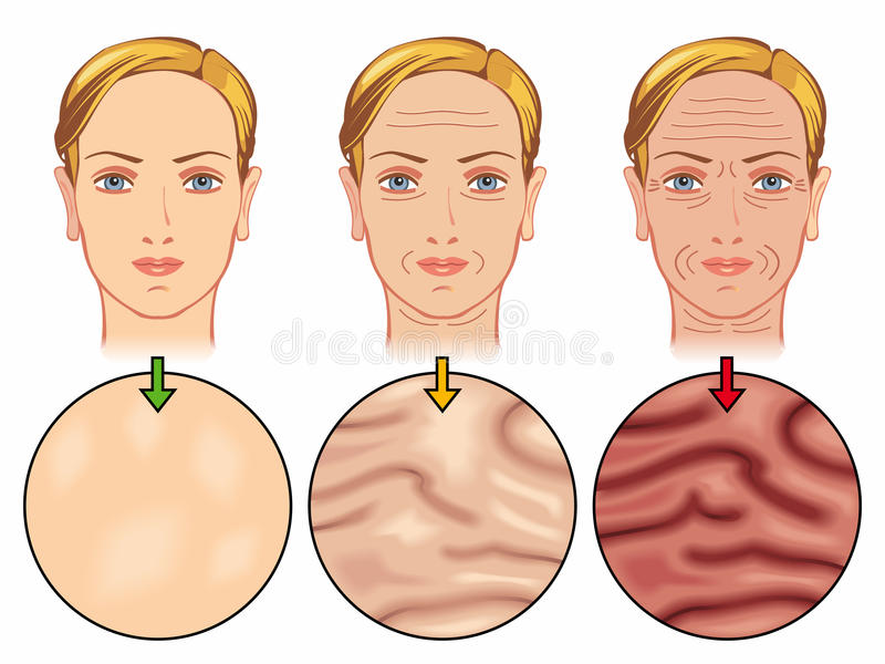 Skin aging. Medical illustration of the effects of skin aging vector illustration