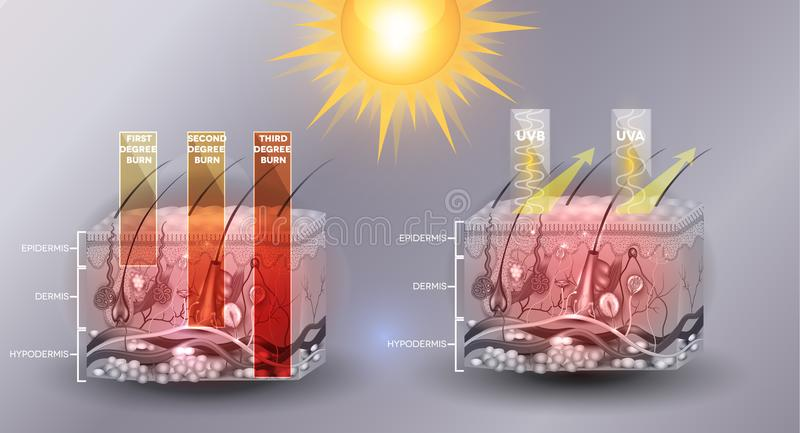 Skin burn classification. First, second and third degree skin burns. Protected skin with sunscreen lotion. UVB and UVA radiation can not penetrate into the royalty free illustration