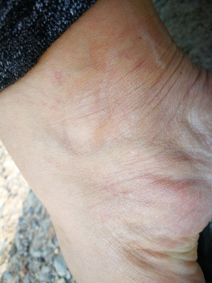 Skin burn sickness from Insect venom. From forest blister broken caucasian closeup cream crumpled dermatology doctor emergency grunge health hospital human stock photos