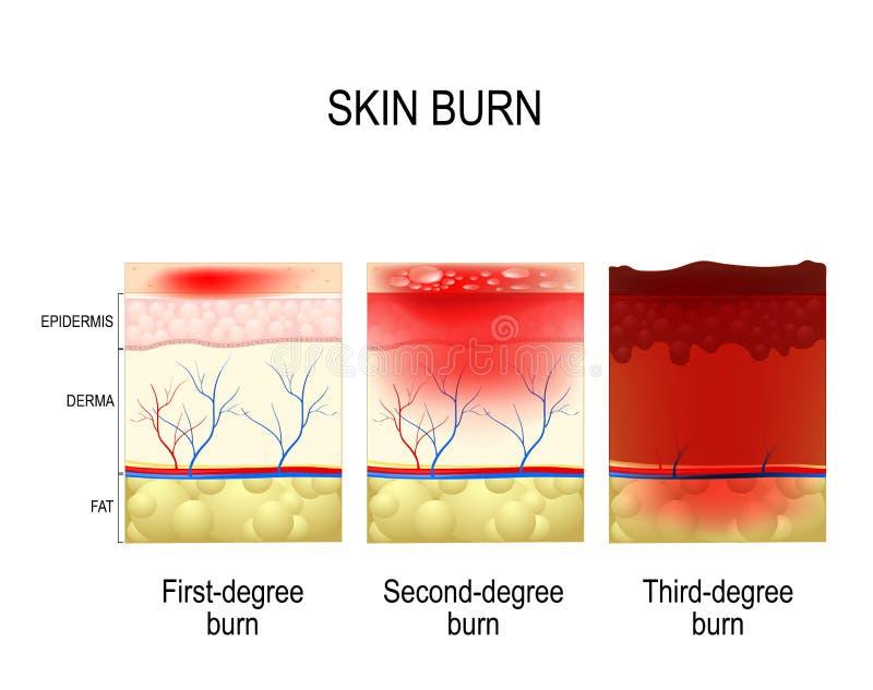 Skin burn. Three degrees of burns. Type of injury to skin. step of burn stock illustration