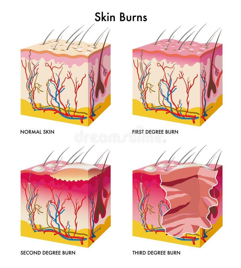 Skin burns. Medical illustration of the formation of skin burns