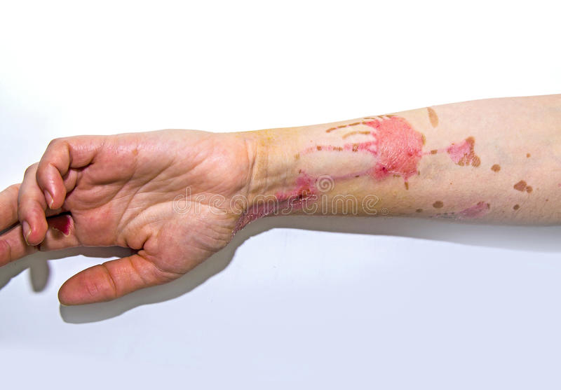 Skin burns on human arm. Human arm with severe burns on the skin stock images