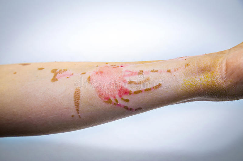 Skin burns on human arm. Human arm with severe burns on the skin stock photos
