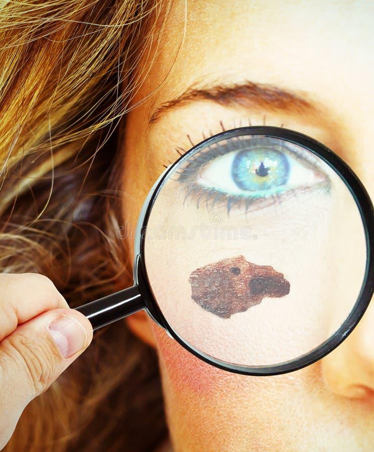 Skin cancer stock images