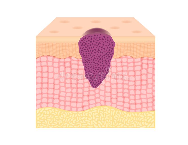 Skin cancer cells in a growing tumor vector royalty free illustration