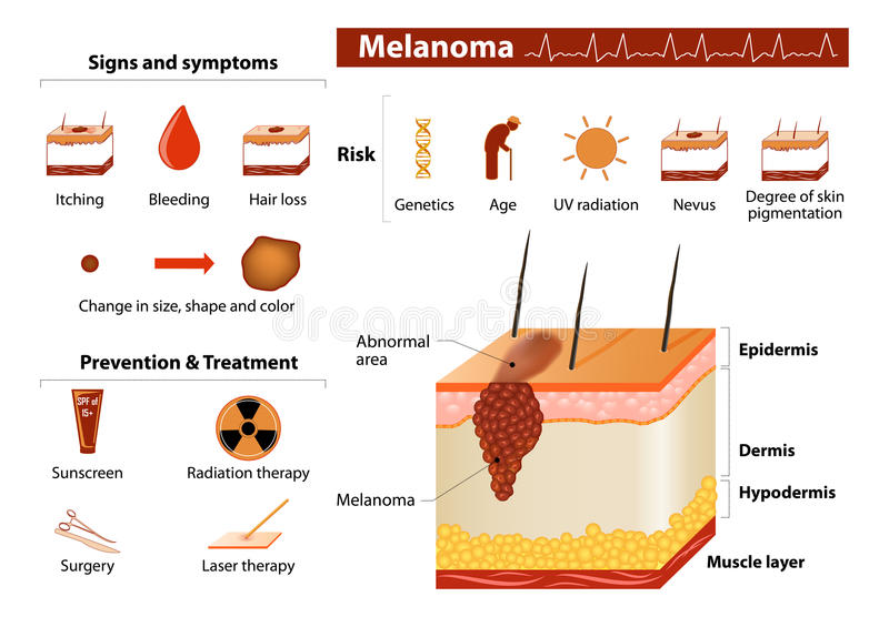 Skin cancer infographics stock illustration