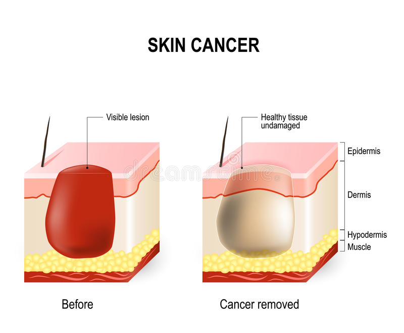 Skin cancer. Treatment. surgically removes. skin section with melanoma before surgery and skin is free of cancer after cure stock illustration