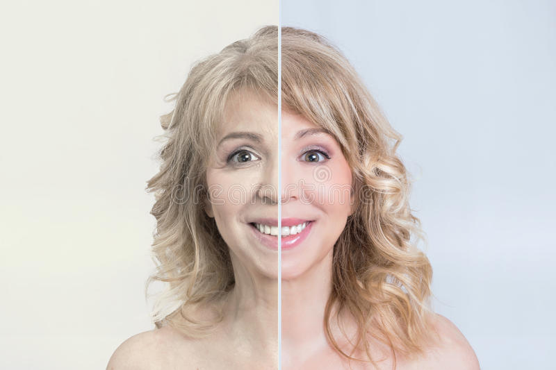Skin care transformation. Before and after skin care transformation of a blonde mid aged woman stock photos
