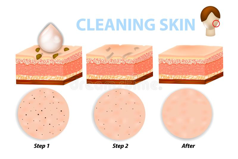 Skin cleaning steps. Facial skin care, pore cleaning. Skin cleaning steps. Before and after using scrubs, cleansers and moisturizers royalty free illustration