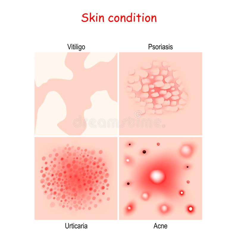 Skin condition and diseases. Close-up of Acne, Urticaria, Psoriasis, Vitiligo royalty free illustration