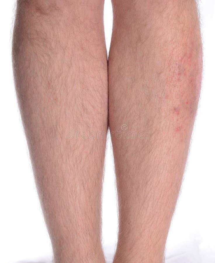 Skin Disease On The Leg Royalty Free Stock Image