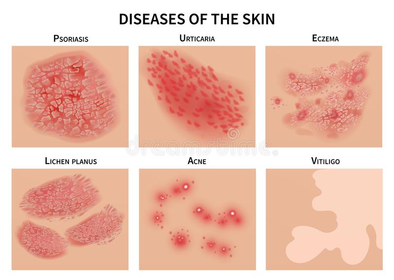 Skin diseases. Derma infection, eczema and psoriasis. Dermatology vector illustration. Disease medical epidermis, dermatitis infection royalty free illustration