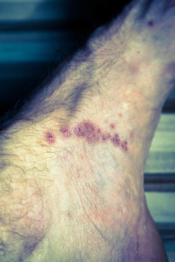 Skin diseases. Scabies - close up view stock images