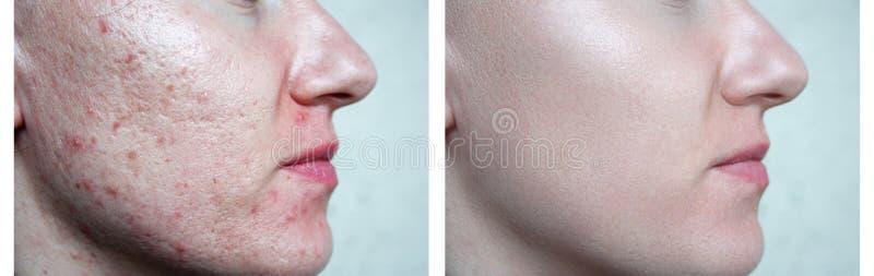 Skin face.daughter royalty free stock photos