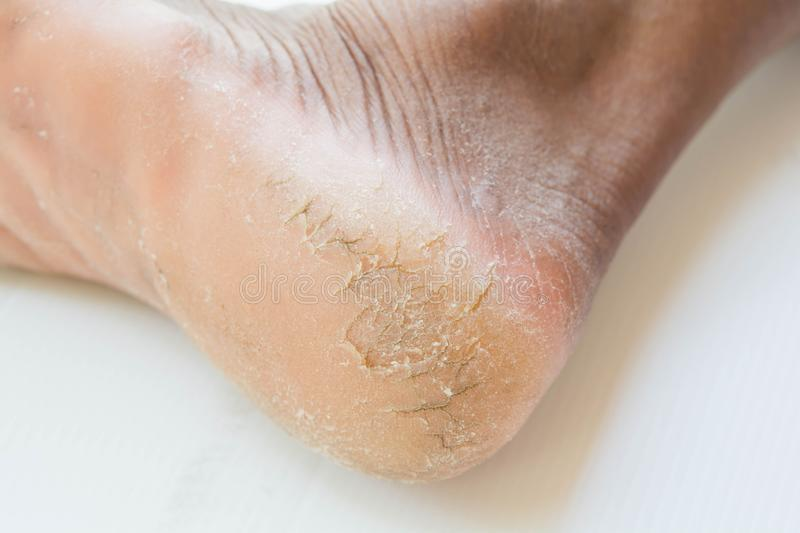 Skin heel crack and skin peeling. And skin care royalty free stock photography