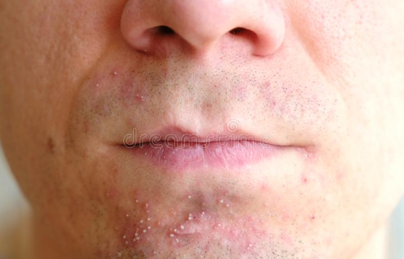 Skin irritation after shaving on man`s skin. Closeup nose and lips. stock photos