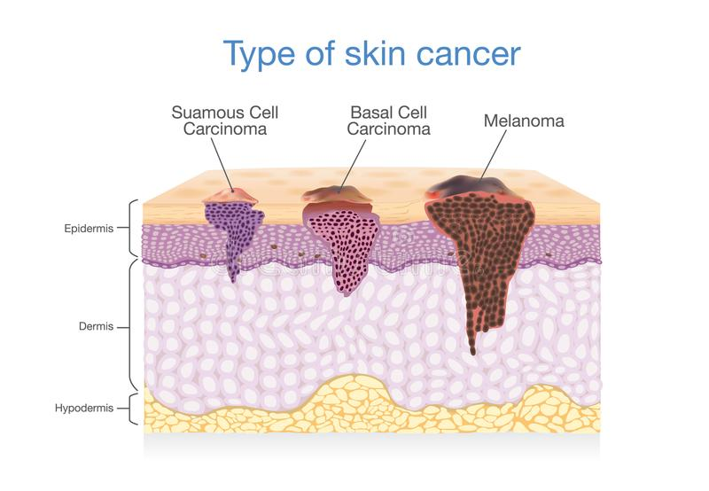 Skin layer have 3 Type of Cancer in one. stock illustration