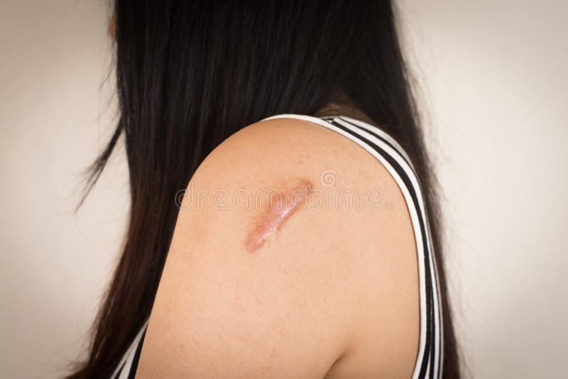 Skin lesions from allergies. royalty free stock photos