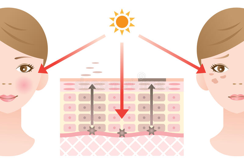 Skin mechanism of blotches. After UV rays exposure, the skin produces melanin. When melanin is produced substance and the skin turnover is disrupted, it will stock illustration