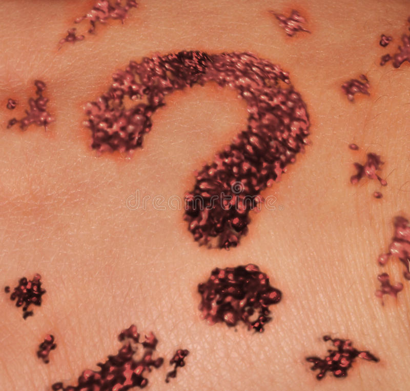Skin Mole Question. Suspicious skin mole as a medical dermatology concept for screening moles as a dark red growth on the human epidermis shaped as a question vector illustration