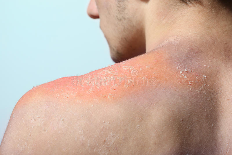 Skin peeling after sunburn. Boy with reddened, itchy skin after sunburn stock photo