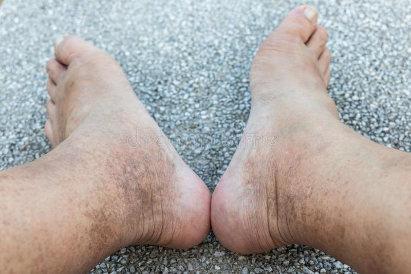 Skin pigmentation on neglected leg of matured male Asian royalty free stock images