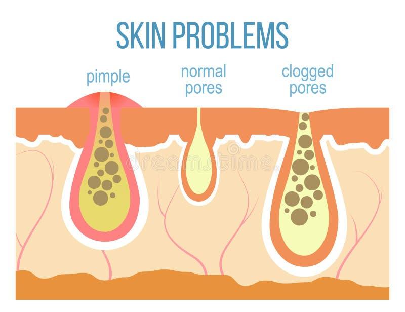 Skin pores close up royalty free illustration