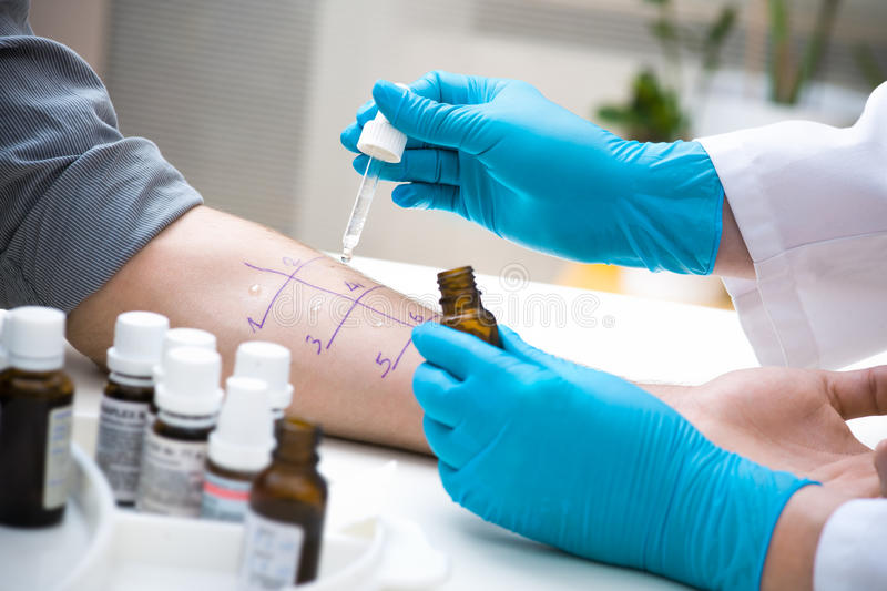 Skin allergy test stock image