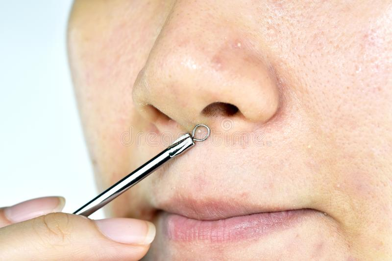 Skin problem with acne diseases, Close up woman face squeezing whitehead pimples on nose with acne removal tool stock photos