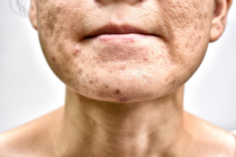 Skin problem with acne diseases, Close up woman face with whitehead pimples on chin, Menstruation breakout. royalty free stock images