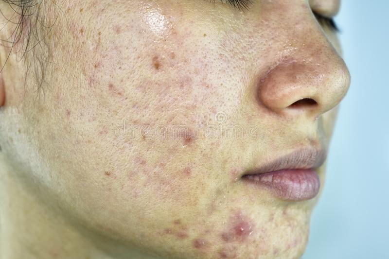 Skin problem with acne diseases, Close up woman face with whitehead pimples, Menstruation breakout. stock photography