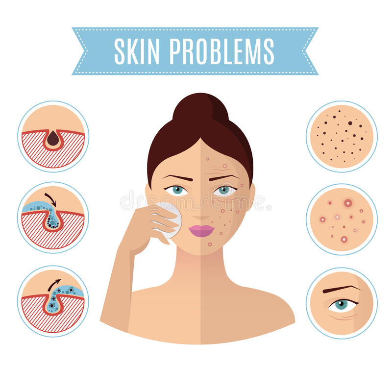 Skin problem solving, acne treatment and cleansing pore for perfect womans face vector icons. Problem with skin face, illustration of beauty facial skin royalty free illustration