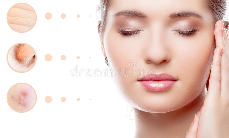 Skin problem of woman face royalty free stock photography
