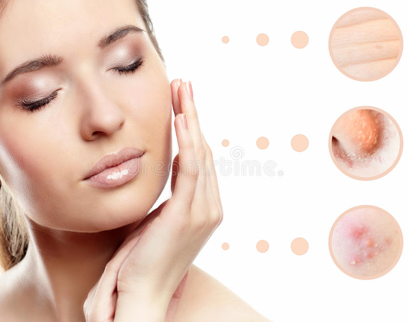 Skin problem of woman face. Concept of skin problem of woman face stock photography