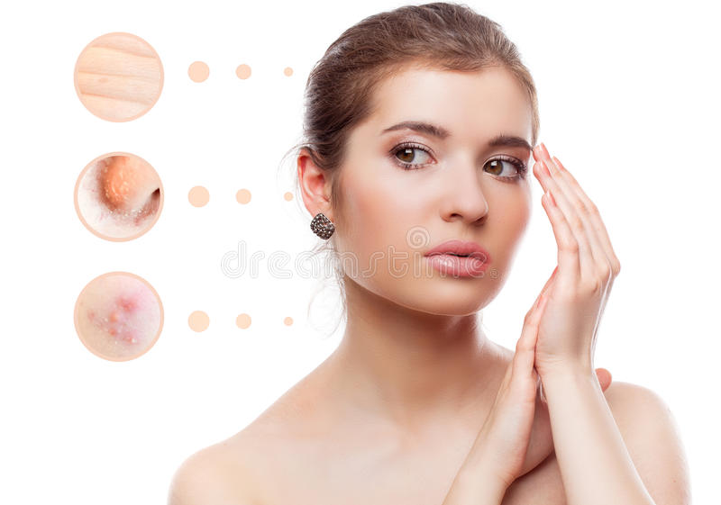 Skin problem of woman face royalty free stock images