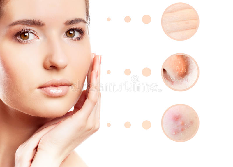 Skin problem of woman face stock photo