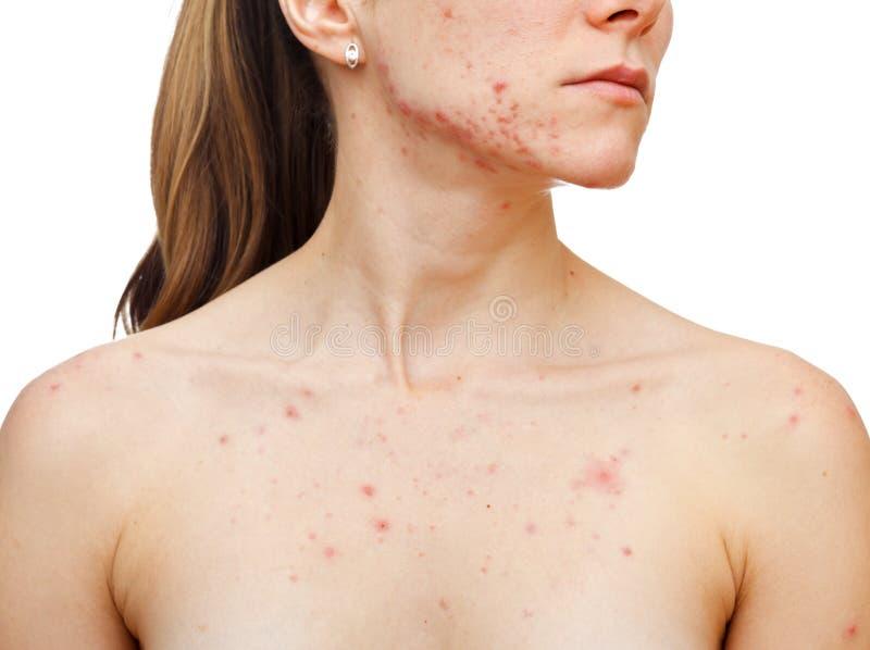 Download Skin problems stock image. Image of eruption, adolescent - 28627559