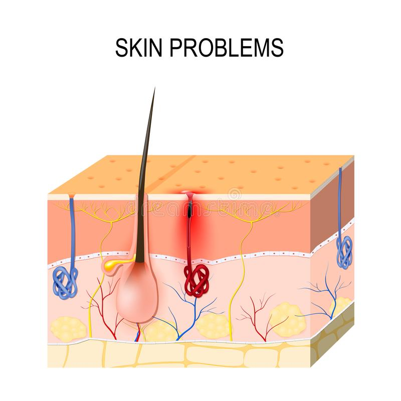 Skin problems. Clogged pores. Sebum and dead skin cells in the clogged pore promotes the growth of a certain bacteria Propionibacterium Acnes. This leads to royalty free illustration