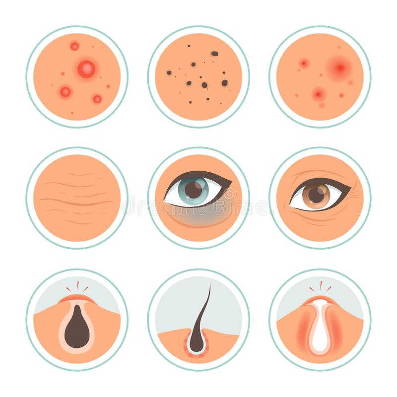 Skin problems. Dark circles woman infection spot washing skin oily face ages pore cleanse vector medical icon. Problem skin dermatology, treatment and care royalty free illustration