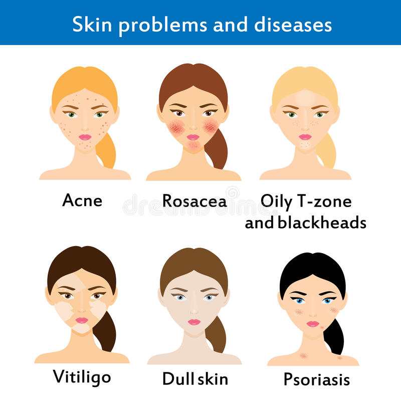 Skin problems and diseases. Acne, rosacea, vititligo and others. Vector illustration vector illustration