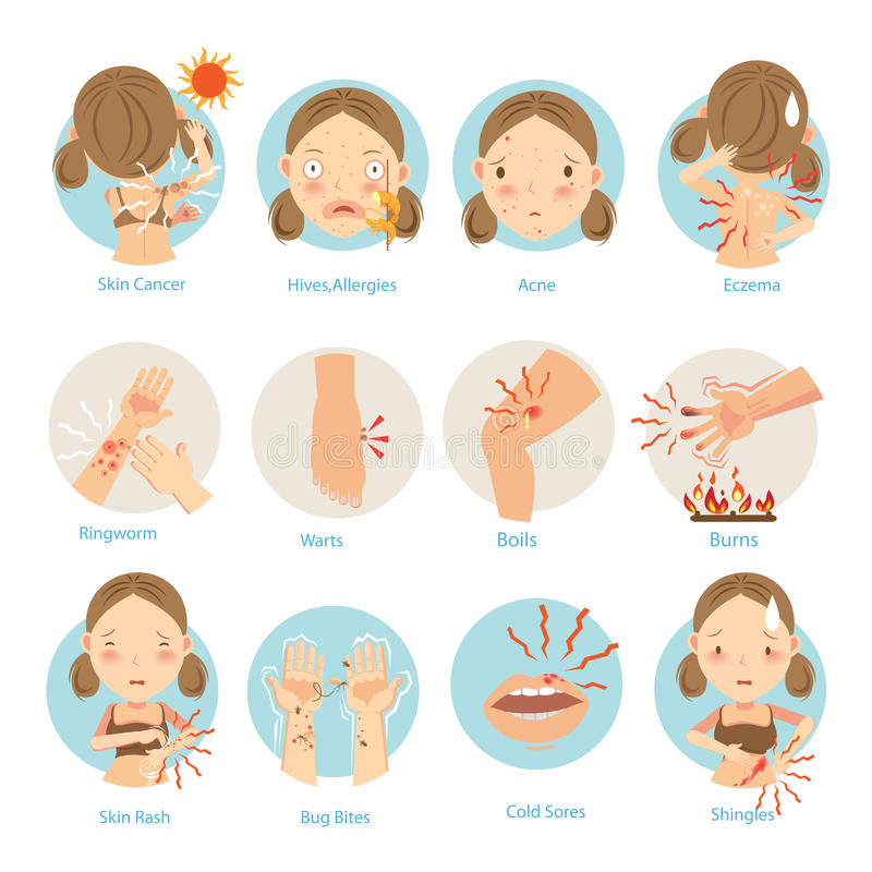 Skin Problems. Most people are a common skin problem.Vector illustrations royalty free illustration
