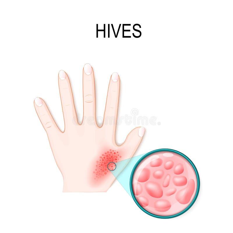 Skin rash. Hives or urticaria. stock illustration
