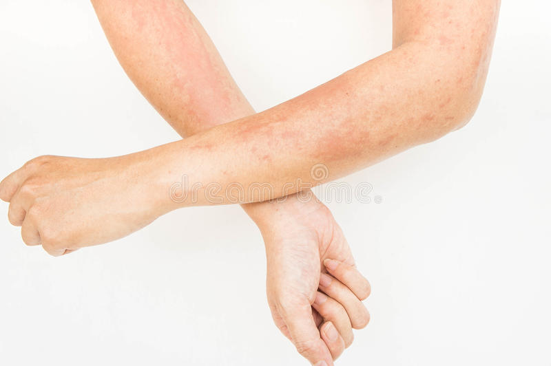Skin rashes, allergies contact dermatitis ,allergic to chemicals royalty free stock photos