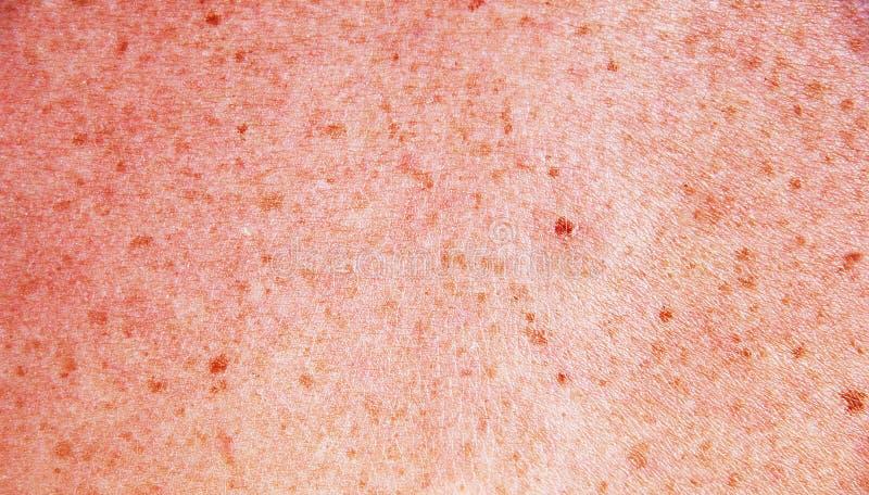 Download Skin Stock Image - Image: 32977851