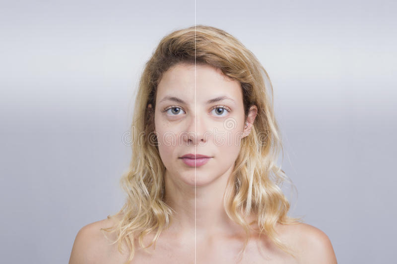 Before and after skin treatment. Blonde girl in concept shot of a before and after skin treatment royalty free stock photo