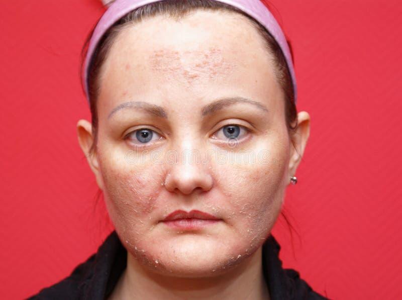 Download Skin woman peeling. stock photo. Image of anti, wrinkles - 12731302