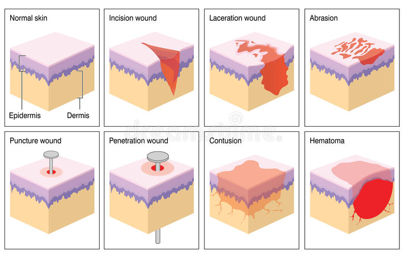 Skin wounds. Various types of skin wound shown as a 3d illustration of the epidermis and dermis of the skin vector illustration
