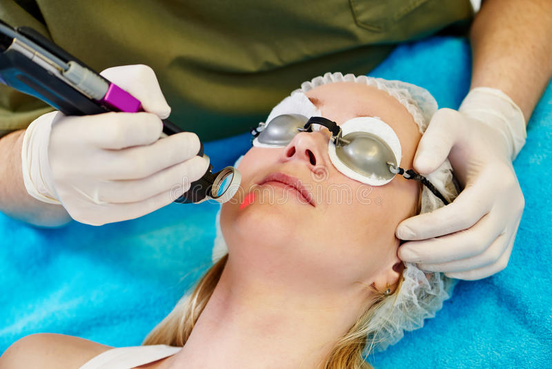 Skincare面对激光整容术 库存照片