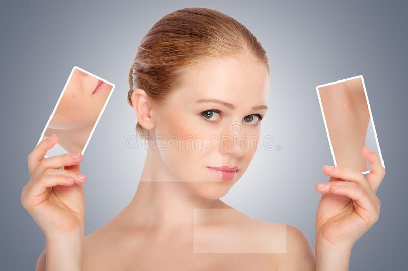 Skincare del concepto. Piel de la mujer joven de la belleza con acné fotografía de archivo libre de regalías